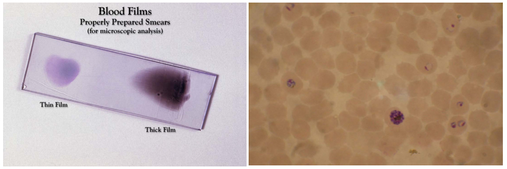 Figure 4: Image of a blood film for microscope diagnosis (left). Blood smear from a P. falciparum culture which shows several red blood cells with the pathogen inside them (right). (Image credit: Wikipedia)