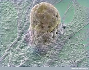 Human embryonic stem cell (gold) growing on a layer of supporting cells (fibroblasts). Source: Annie Cavanagh, Wellcome Images.